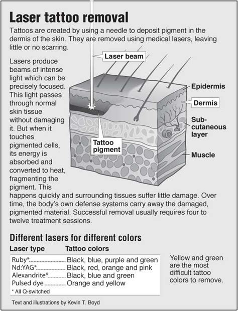 tattoo removal information information graphic about laser removal with links