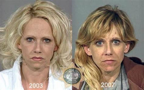 Meth Detox Pills by Faces Of Meth Addicts Planetoddity