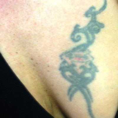 tattoo removal berkshire removal reading berkshire chiltern