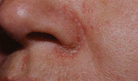 remedios para dermatitis seborreica la ropa para la dermatitis seborreica seborrea fotos im 225 genes 187 seborrea
