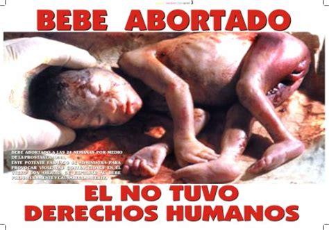 imagenes impactantes aborto aborto fotograf 237 as e ilustraciones 2 grata certeza