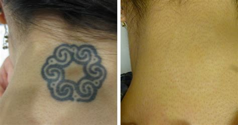 tattoo removal denver co denver s original removal since 2006 ink b