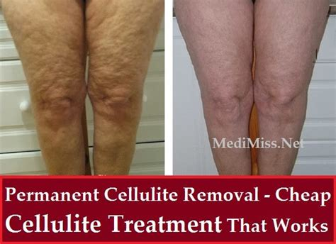 This Cellulite Works permanent cellulite removal cheap cellulite treatment