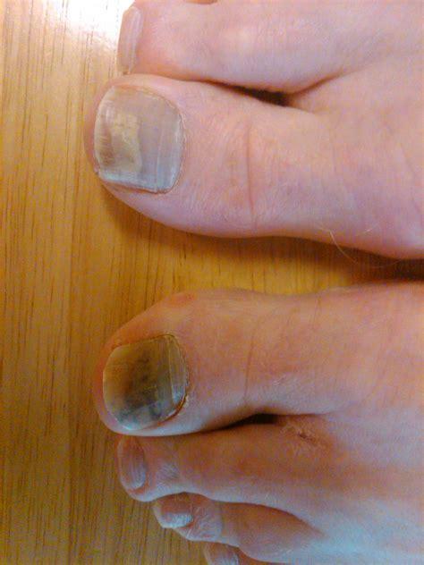 toe cancer melanoma toenail