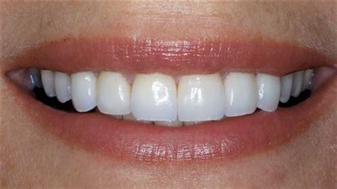 chipped teeth cascade family dental care