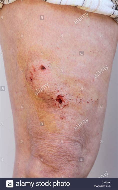 bite puncture wound bite puncture wound on human leg stock photo royalty free image 57933986 alamy