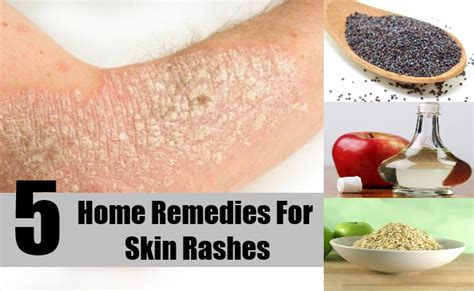 top 12 home remedies for rashes rejuvenation
