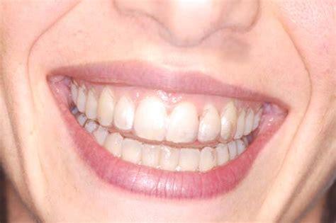 apparecchi mobili denti ortodonzia malocclusione postura