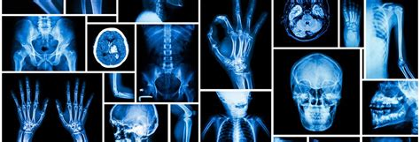 Imagenes Feliz Dia Del Radiologo   191 qu 233 es un radi 243 logo blog emp
