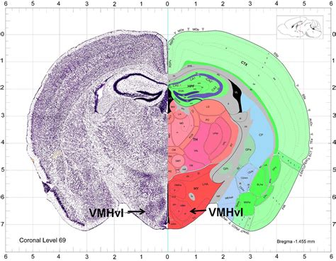 mouse brain coronal section lin main