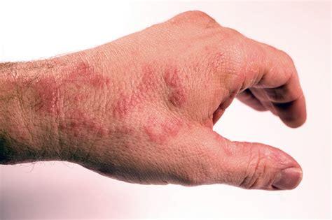 dermatite da allergia alimentare dermatite atopica e allergie da contatto quale legame