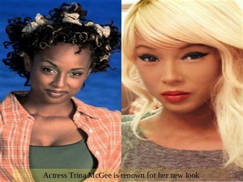 celebrity skin whitening celebrity skin whitening
