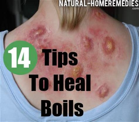 boils symptoms causes diagnosis and treatment natural 11 tips to treat boils faster home remedies for boils