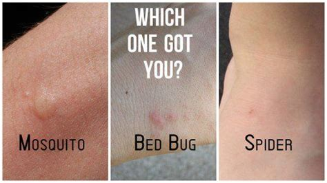 bed bug  mosquito bite comparisons  aid bed