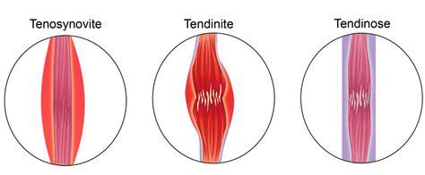 02 quelle est la diff quelle est la diff 233 rence entre tendinite tendinose et