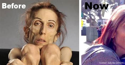 Nmsa Section 40 4 11 1 Child Support Guidelines by This Anorexic Weighed 40 Pounds And Was About To