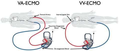Clinical Review Mechanical Circulatory Support For