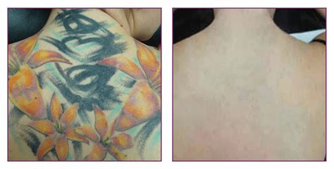 tattoo removal on the nhs removal clearskin newcastle remove your tired ink