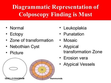 Mosaic Pattern Atypical Transformation Zone | colposcopy today practical approach dr sharda jain