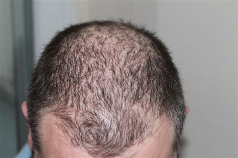citispot shed your public hair easily 3 easy ways to beat hair loss