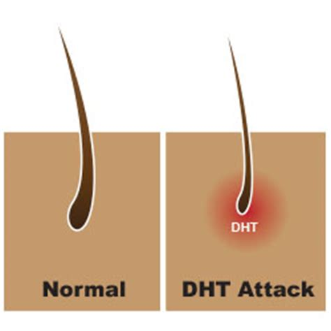 dht and hair loss 5ar inhibitor seehow dht hair loss