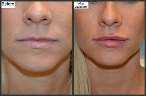 injection tattoo removal before and after photos millefiori juvederm new