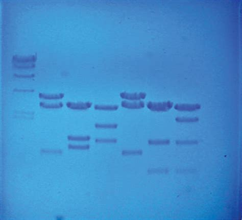 dna fingerprinting lab report sle dna fingerprinting