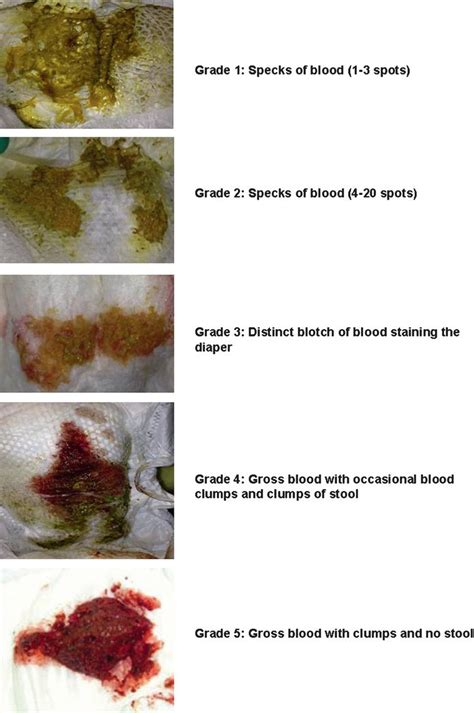 assessment of the severity of visible blood in the stool