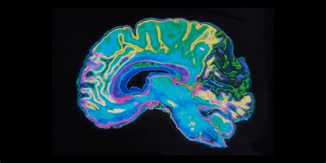 re brains re lieve solutions for chronic pain