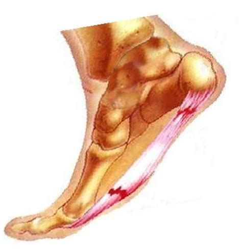 Planters Faciaitis by What Is Plantar Fasciitis Why Can T They Play Prlog