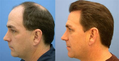 best hairtransplant in the world greffe cheveux tunisie greffe cheveux fue tarif implants capillaires