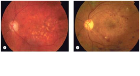 grid pattern laser photocoagulation exam 2 conditions and pictures of them optometry 223