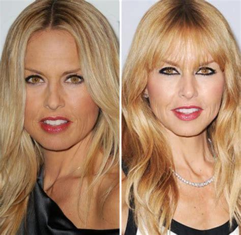 louis licari plastic surgery louis licari stylist plastic surgery rachel zoe before and