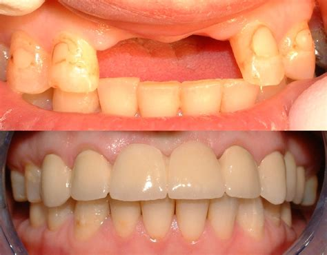 What Is Root Bridge by Crowns And Bridges Niles Il Dentist