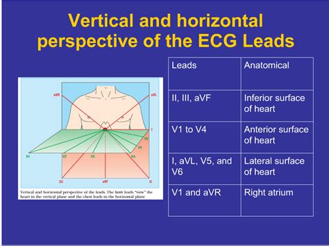 Ecg Tutorial Online Video | image gallery ecg tutorial