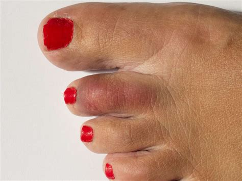 Date Interlude Physical Therapy For The Toe by Prolonged Sitting Exercise Does Not Offset Health Risks