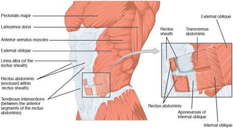 diastasis recti abdominis physiopedia