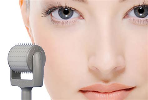 microneedling how to derma roll totalbeautycom skin needling cairns clear skin