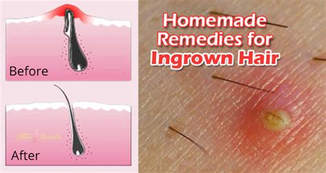 how to get rid of ingrown hair