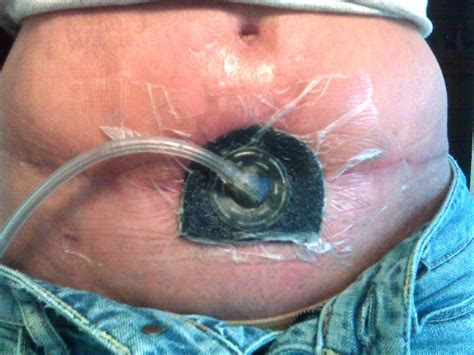 Wound Vac On C Section Incision by Wound Vac Tummy Tuck Abdominoplasty Pictures Photos