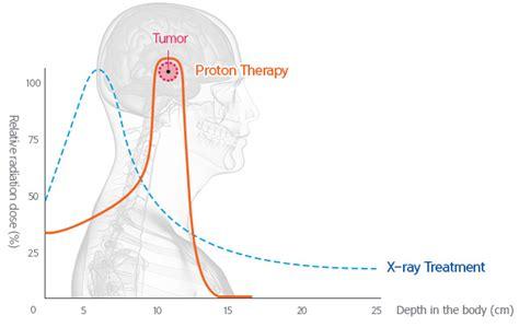 proton bragg peak how it works what is proton therapy samsung proton