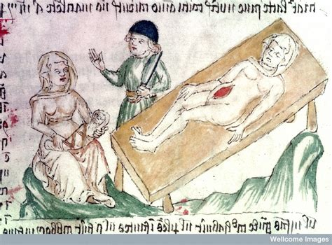 caesarean section origin advice concerning pregnancy and health in late medieval