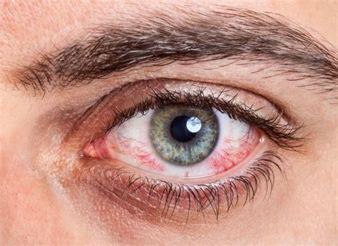 eye allergies eye allergy allergic conjunctivitis allergies and health