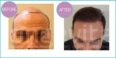 jobs in hair transplant technicianjobs london hair transplant before and after pictures longevita