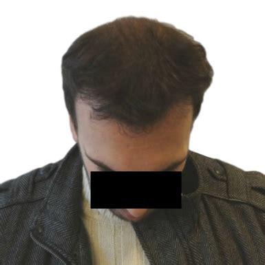 pro vorher nachher vorher nachher fotos haartransplantation prohair clinic