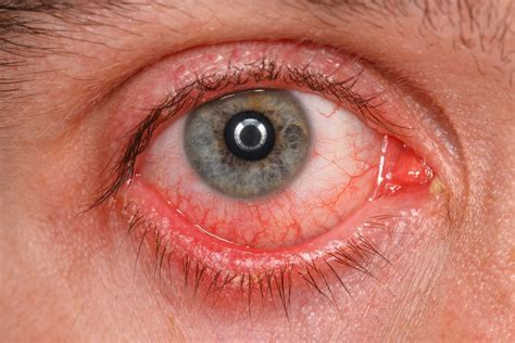 symptoms of pink eye 9 itchy scratchy uncomfortable symptoms of pink eye activebeat