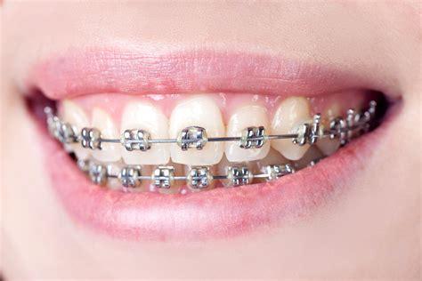 best braces traditional dental braces vs invisalign aligners
