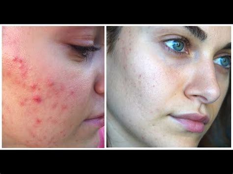 Acne Licuid how i treated my open pores acne scarring rubygolani