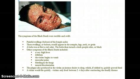 dying symptoms black plague symptoms buboes www imgkid the image kid has it