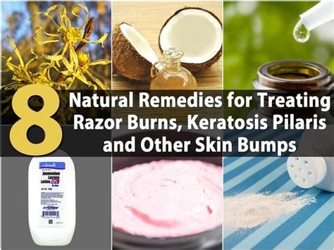 8 remedies for treating razor burns keratosis